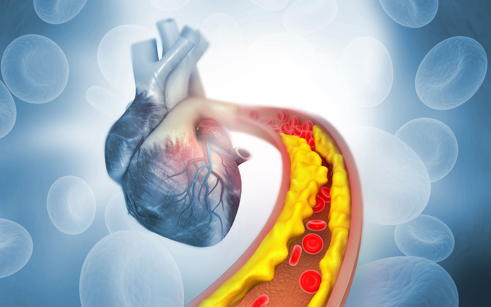Cholesterol Plaque in Arteries