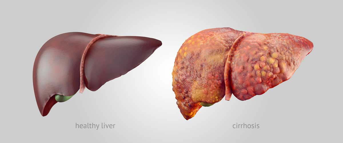 Healthy Liver vs Liver With Cirrhosis